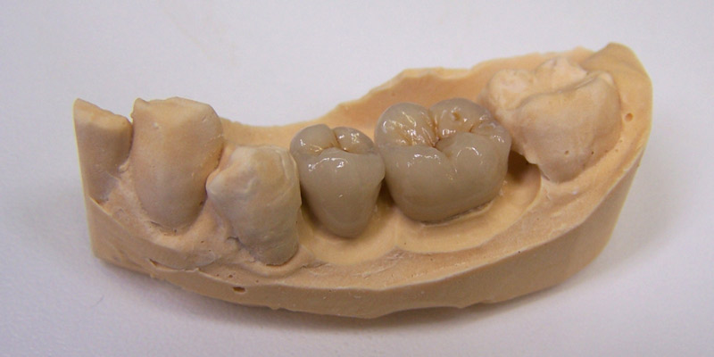 Porcelain bonded crown