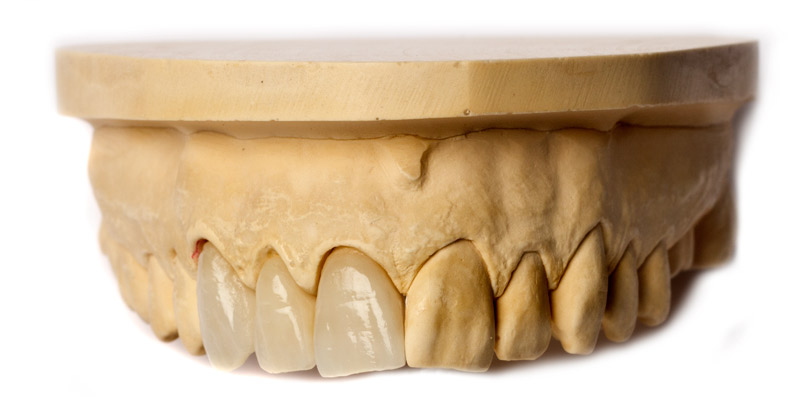 Zirconia bridge