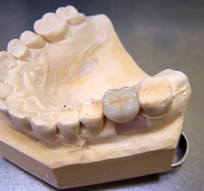 Gallery Art Dental Laboratory